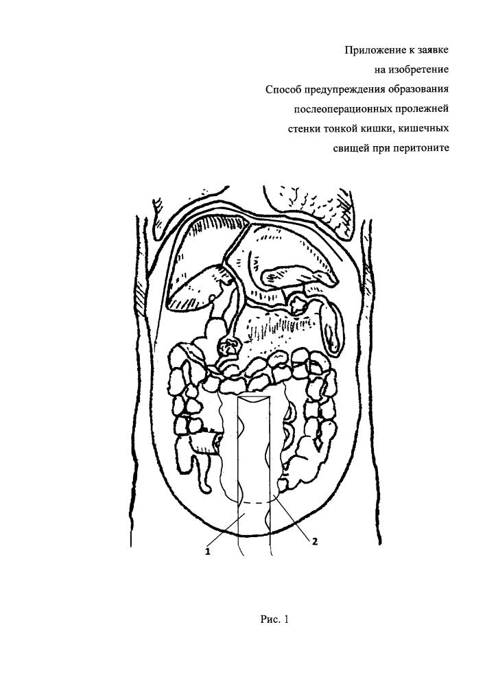 Способ предупреждения образования послеоперационных пролежней стенки тонкой кишки, кишечных свищей при перитоните
