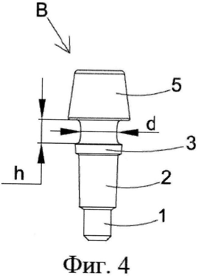 Постоянный и гибкий протезный абатмент и соответствующий способ угловой регулировки