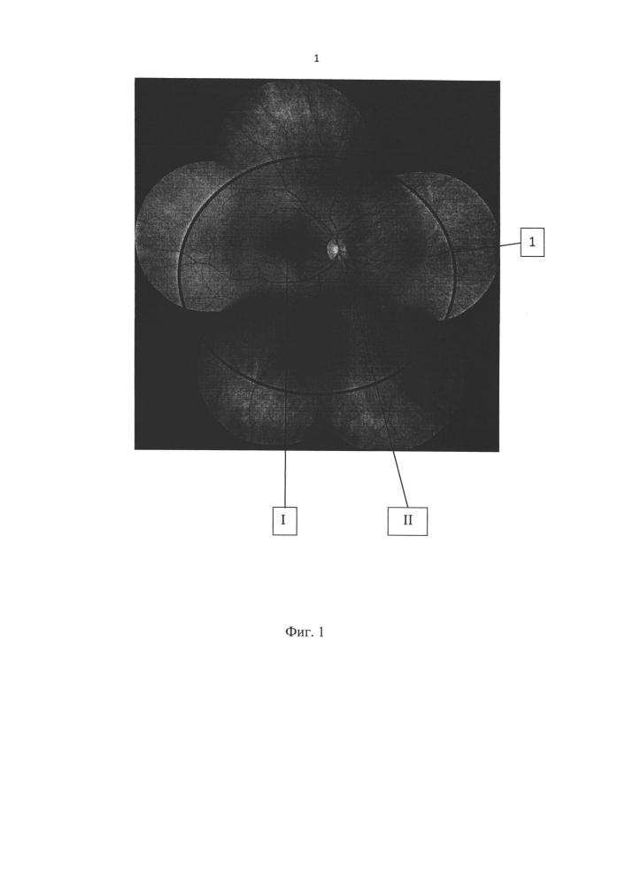 Способ лечения окклюзии центральной вены сетчатки и ее ветвей