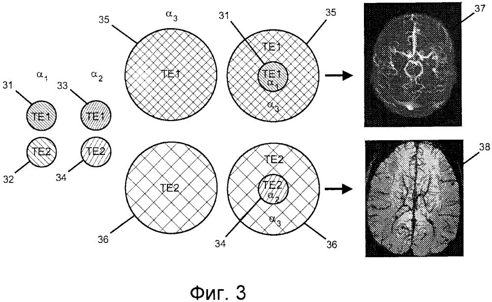 Быстрое формирование магнитно-резонансного изображения с двойной контрастностью