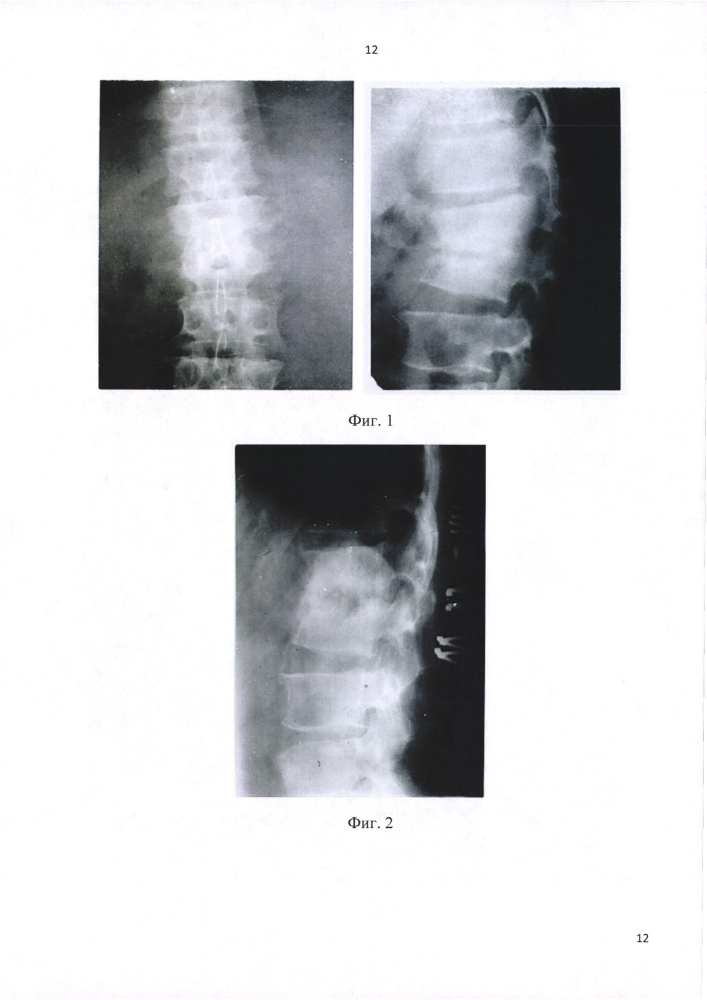Миниинвазивный способ лечения затихших ограниченных деструктивных форм туберкулёзных и неспецифических спондилитов у больных старших возрастных групп