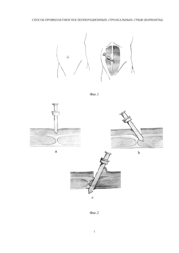Способ профилактики послеоперационных троакарных грыж (варианты)