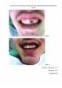 Способ восстановления тканей зуба при травматическом поражении у детей