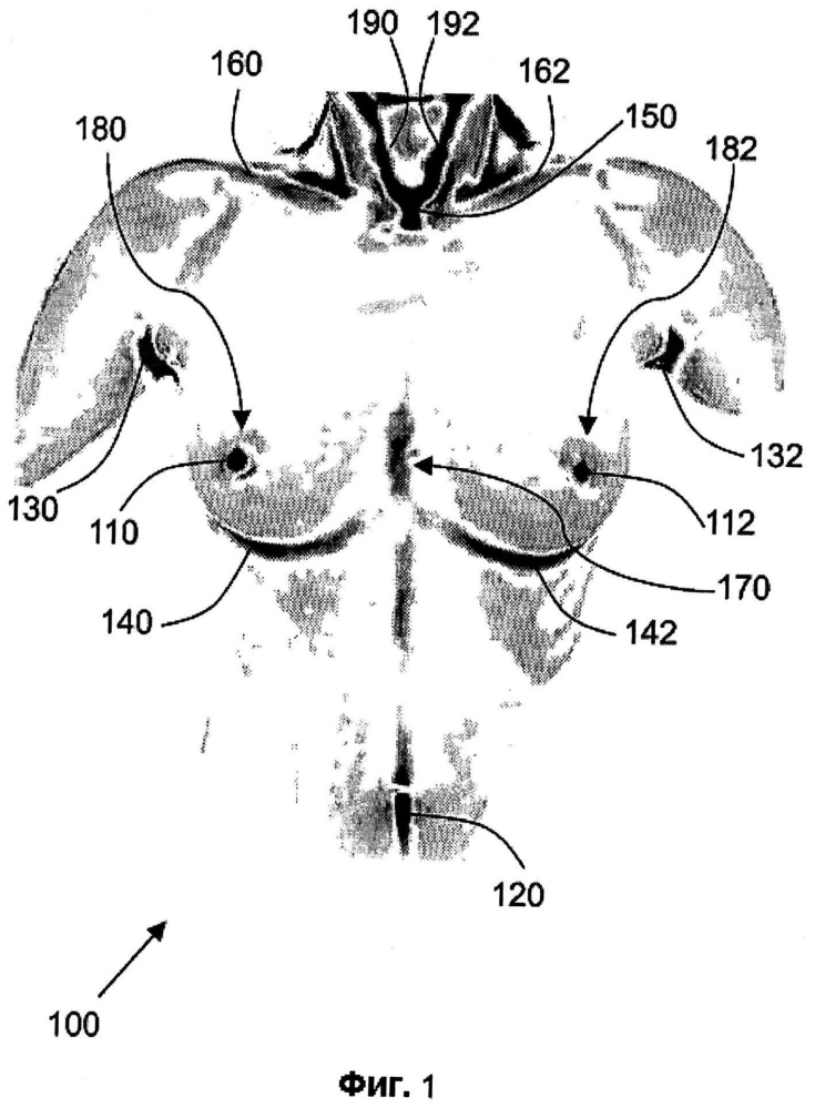 Распознавание анатомических характеристик и размерный анализ объема груди для обеспечения хирургии груди