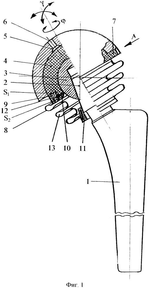 Закрытый эндопротез тазобедренного сустава