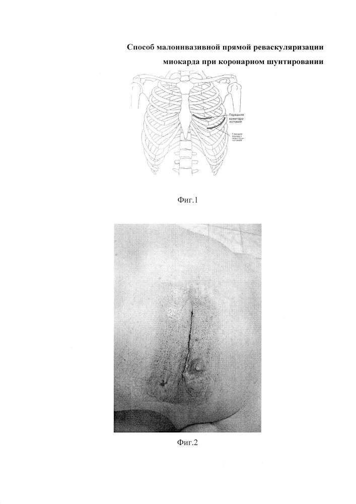 Способ малотравматичной прямой реваскуляризации миокарда при коронарном шунтировании