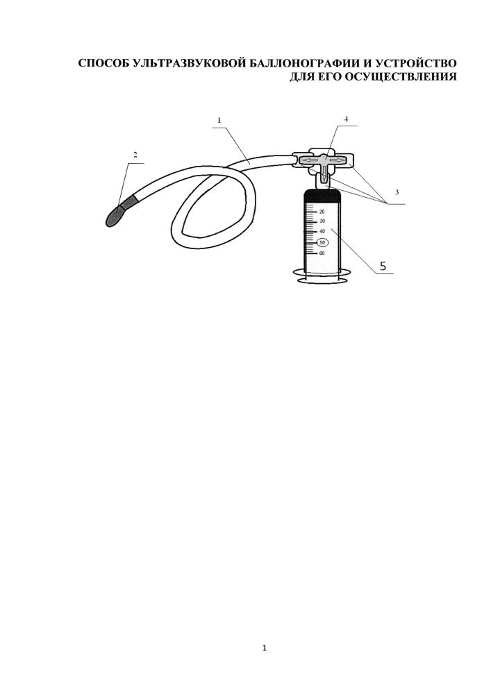 Способ ультразвуковой баллонографии и устройство для его осуществления