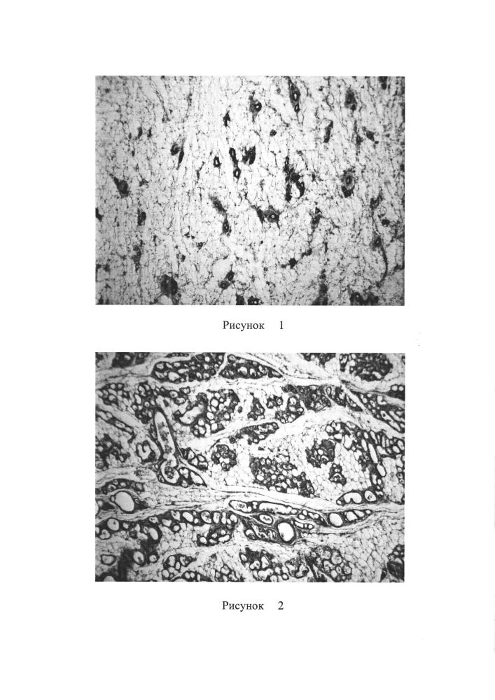 Способ моделирования фиброзно-кистозной болезни молочной железы в эксперименте