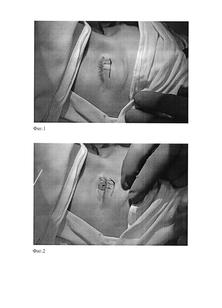 Способ хирургического лечения птоза верхнего века при сохранной или сниженной функции леватора
