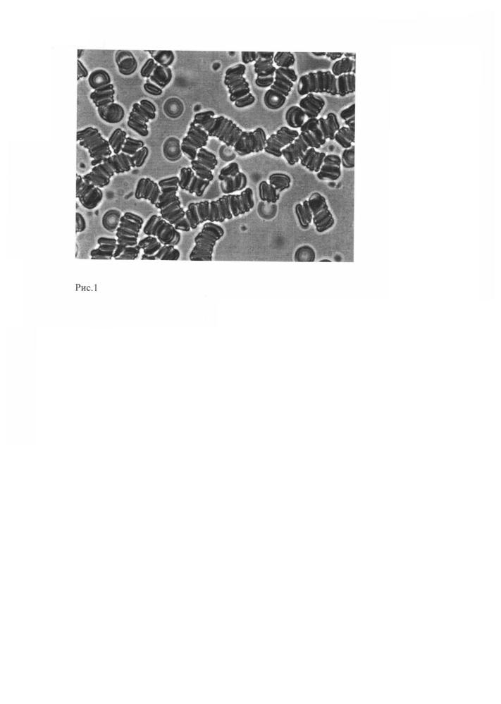 Способ микроскопической оценки агрегатного состояния эритроцитов в аутоплазме