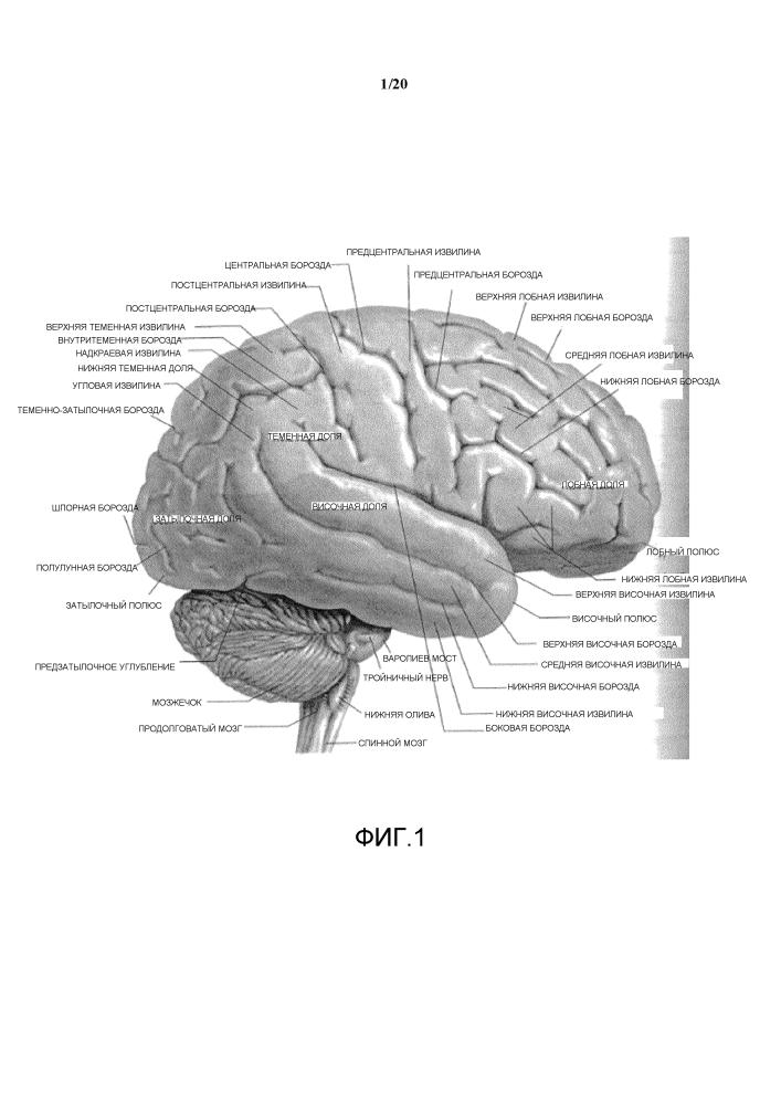 Система интравентрикулярной доставки лекарственного средства для улучшения исхода после повреждения головного мозга, нарушающего мозговое кровообращение