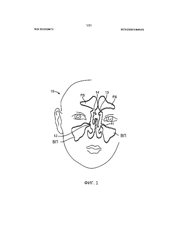 Устройства и способы для расширения отверстия придаточной пазухи носа и для лечения синусита