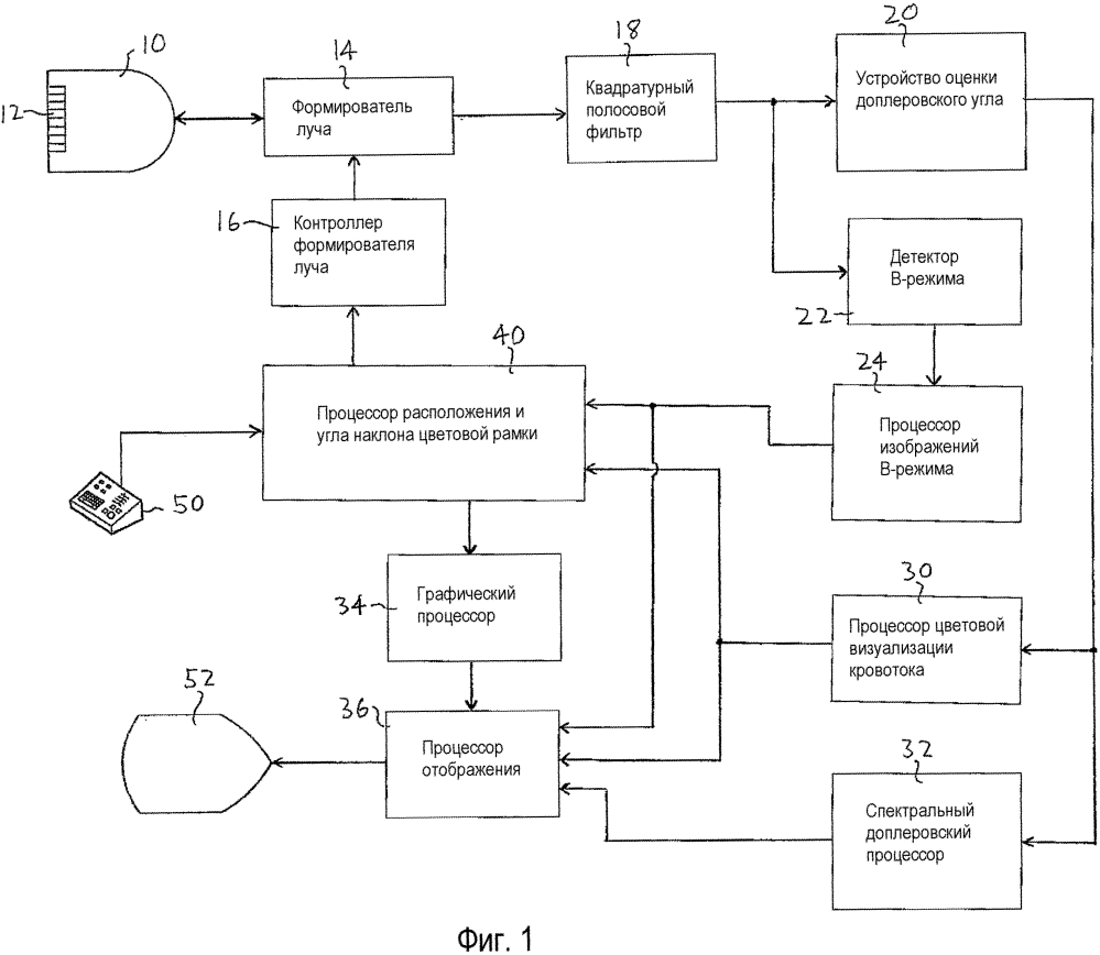 Ультразвуковая система с автоматической установкой параметров доплеровского потока