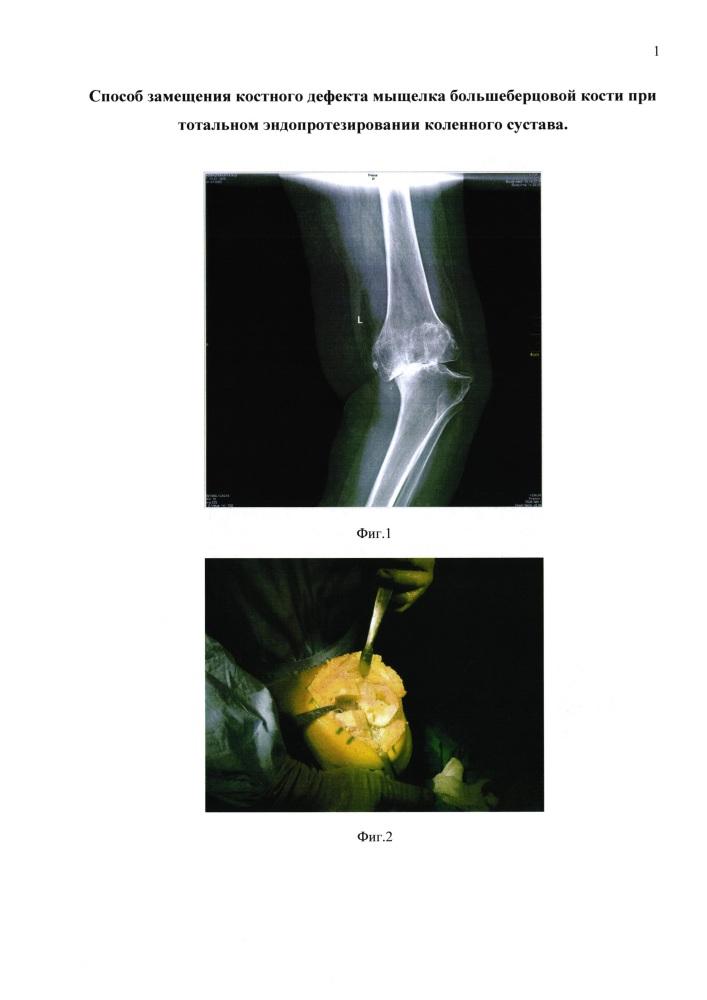 Способ замещения костного дефекта мыщелка большеберцовой кости при тотальном эндопротезировании коленного сустава