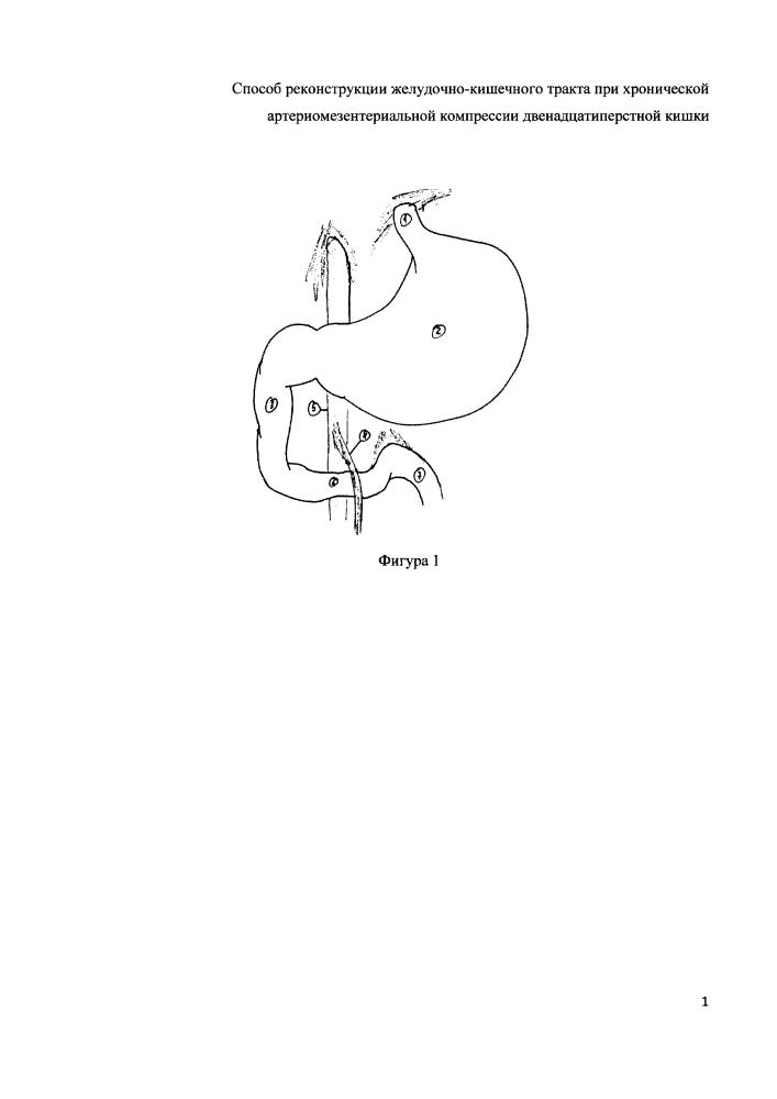 Способ реконструкции желудочно-кишечного тракта при хронической артериомезентериальной компрессии двенадцатиперстной кишки