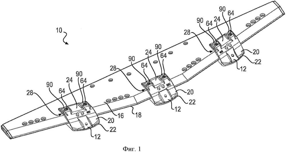 Устройство для защиты кромки узла землеройного орудия (варианты)