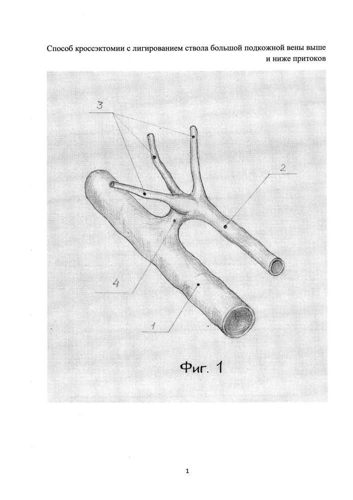 Способ кроссэктомии с лигированием ствола большой подкожной вены выше и ниже притоков
