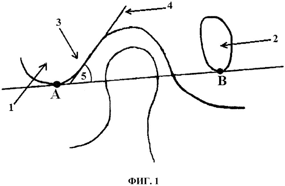Способ анализа компьютерных томограмм височно-нижнечелюстного сустава