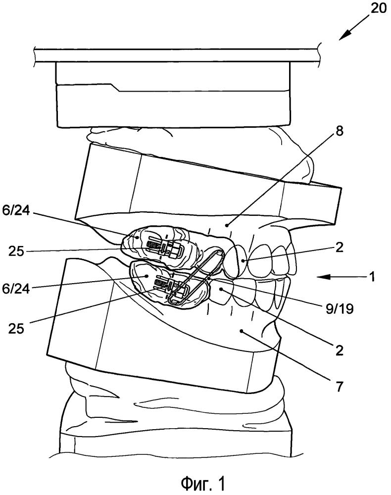 Устройство для коррекции положения зубов относительно височно-нижнечелюстных суставов