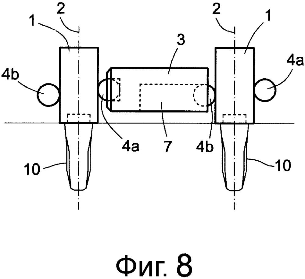 Металлическая конструкция, служащая внутренней опорой для зубных протезов
