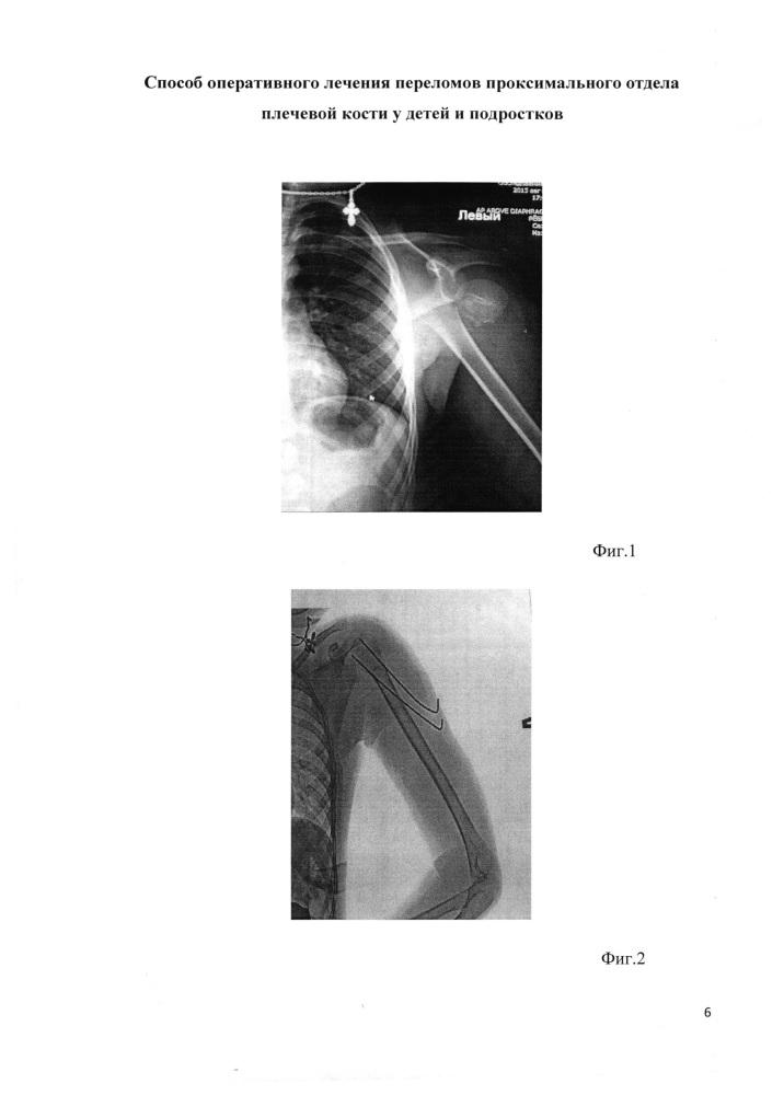 Способ оперативного лечения переломов проксимального отдела плечевой кости у детей и подростков