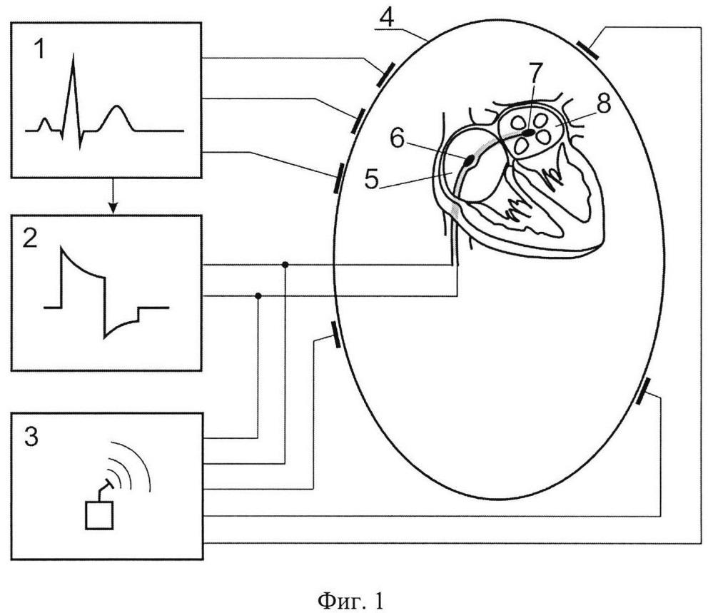 Способ формирования импульсного электрического поля для безболевой эндокардиальной кардиоверсии