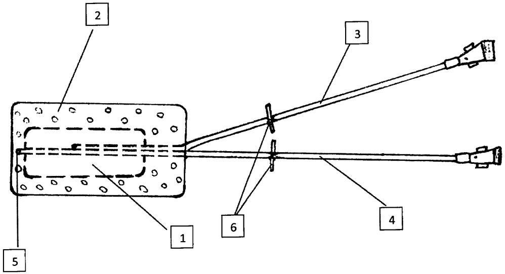 Способ послеоперационного протезирования голосового отдела гортани после ларингопластики и стент для его осуществления
