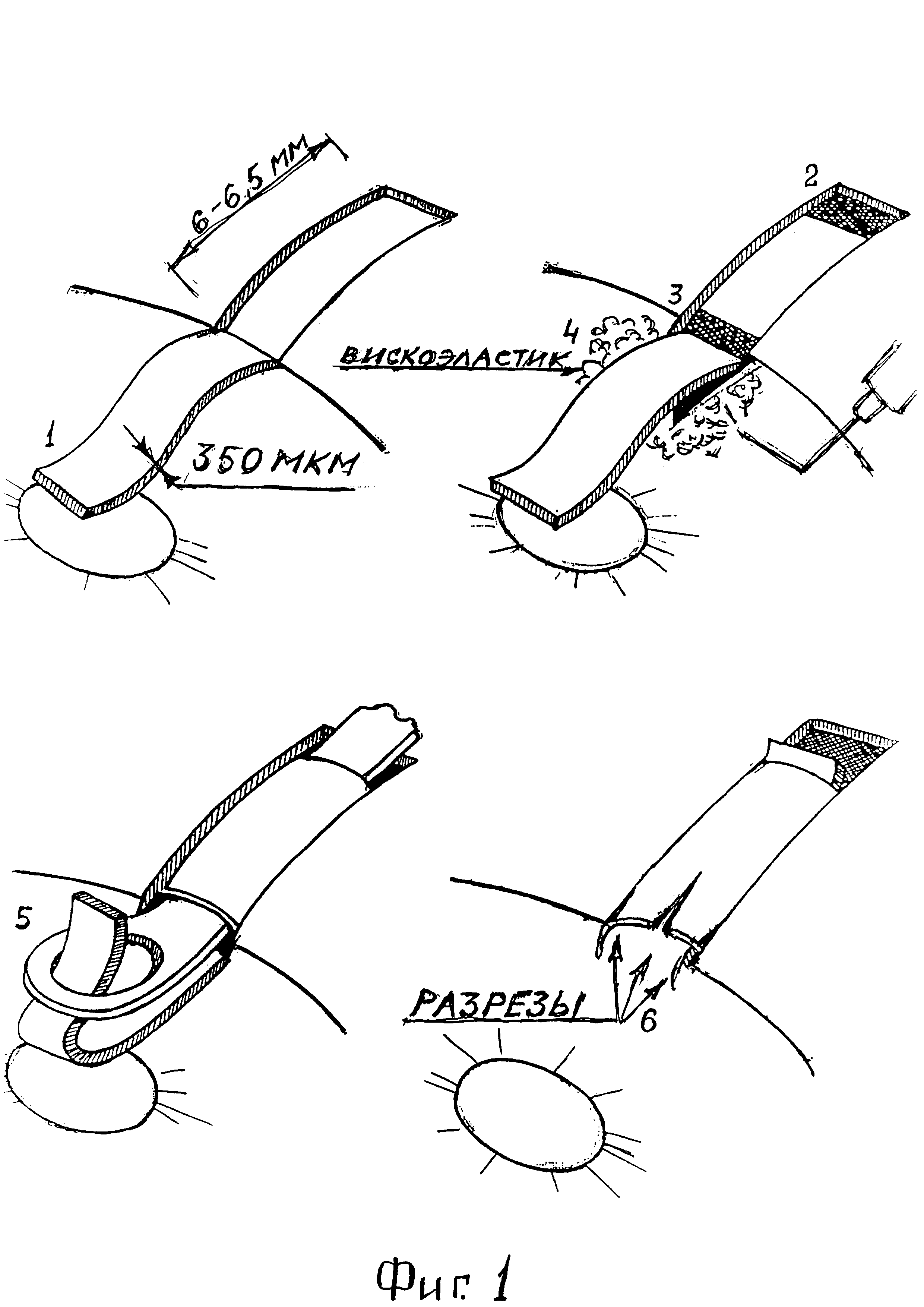 Способ хирургического лечения глаукомы с помощью дренирующей аутоклапанной лимбосклерэктомии
