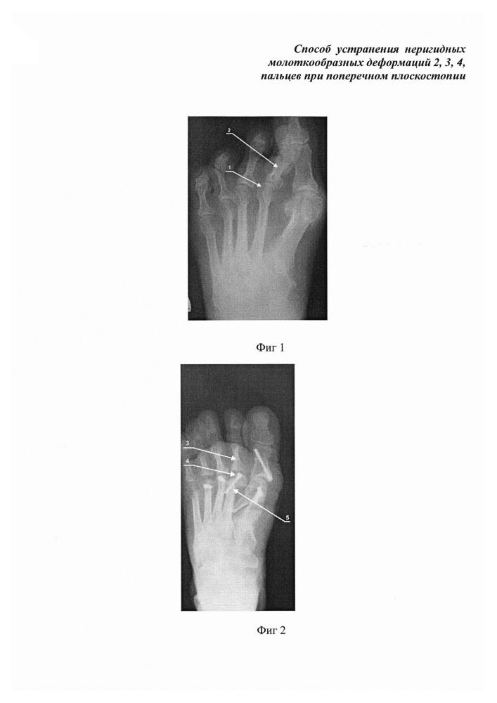 Способ устранения неригидных молоткообразных деформаций 2, 3, 4 пальцев при поперечном плоскостопии