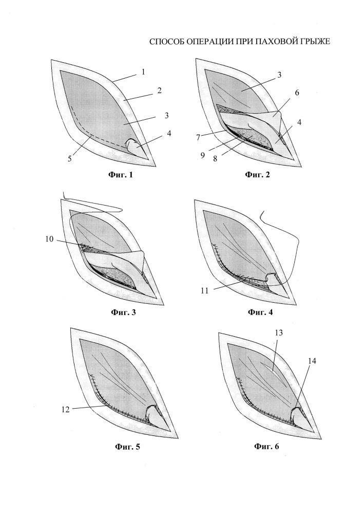 Способ операции при паховой грыже