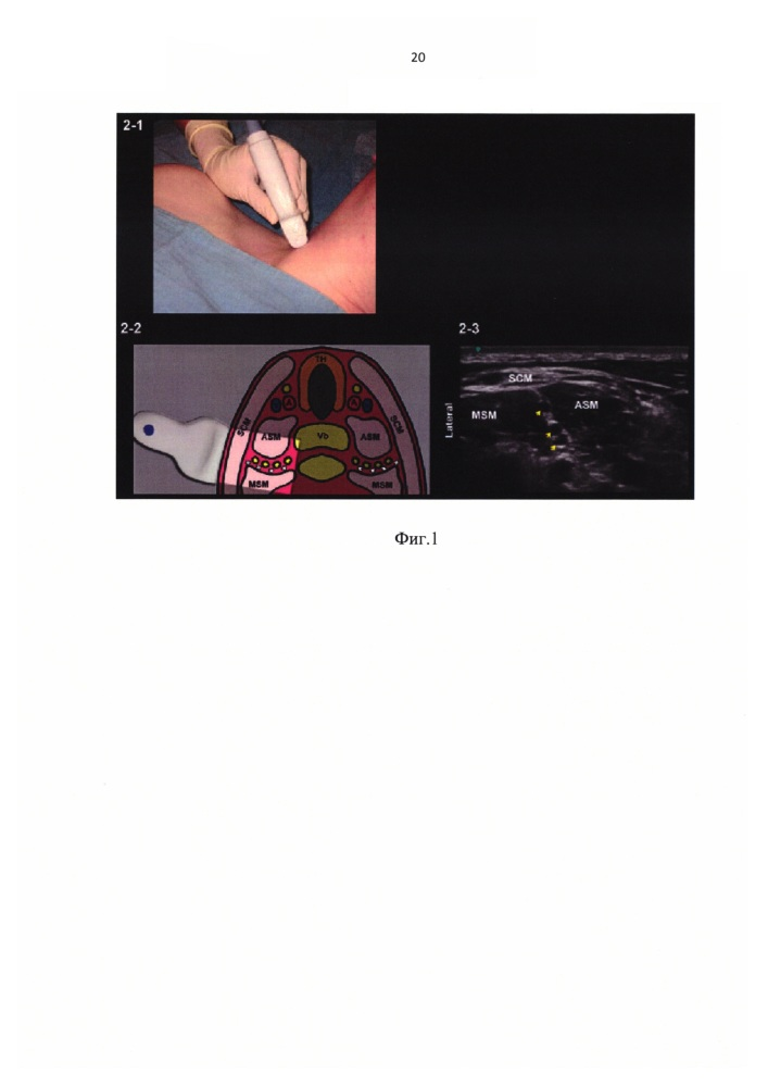 Способ межлестничной анестезии при артроскопических оперативных вмешательствах на плечевом суставе
