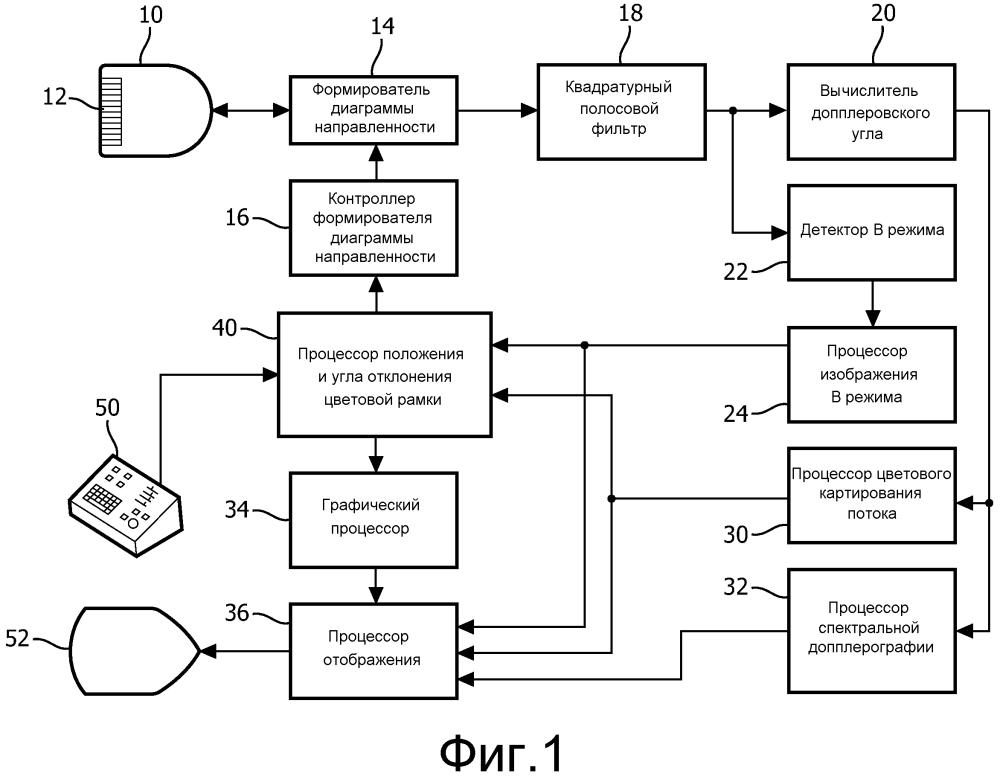 Ультразвуковая система с динамически автоматизированной установкой параметров потоковой допплерографии при движении контрольного объема