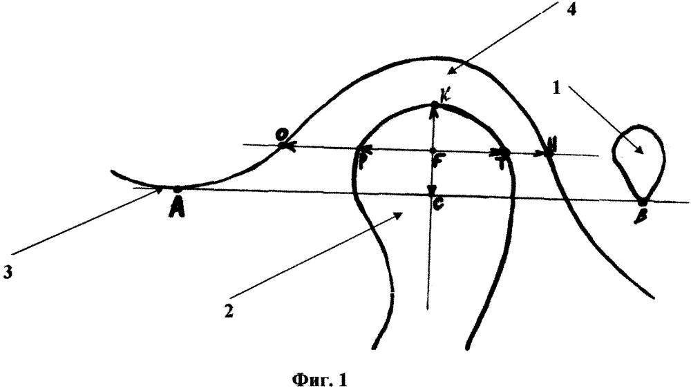 Способ измерения костных структур височно-нижнечелюстного сустава по компьютерной томограмме