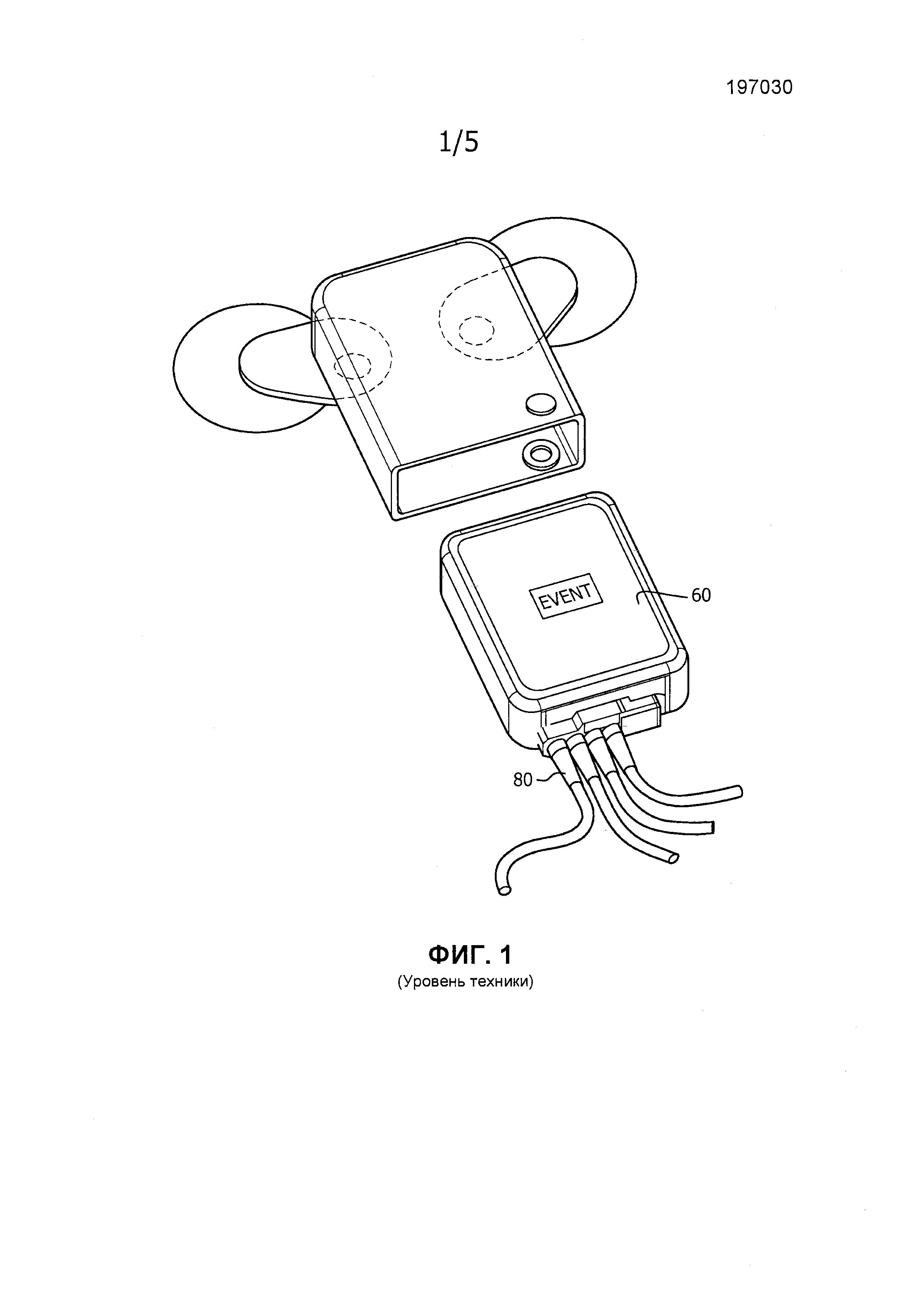 Сменный защелкивающийся соединитель электрода и кабеля для экг