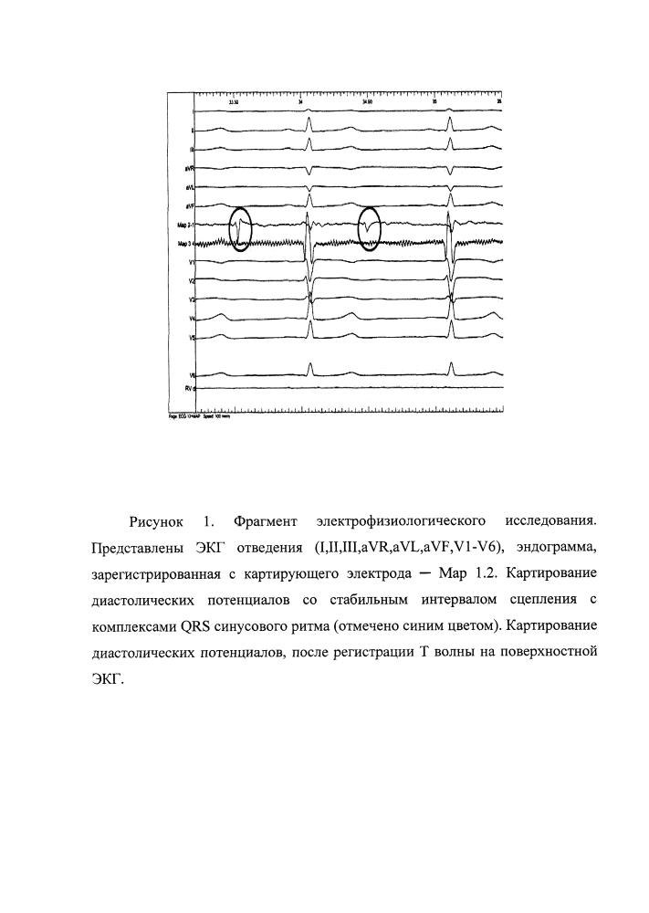 Метод устранения некоронарогенных желудочковых нарушений ритма сердца путем радиочастотной катетерной абляции диастолических потенциалов