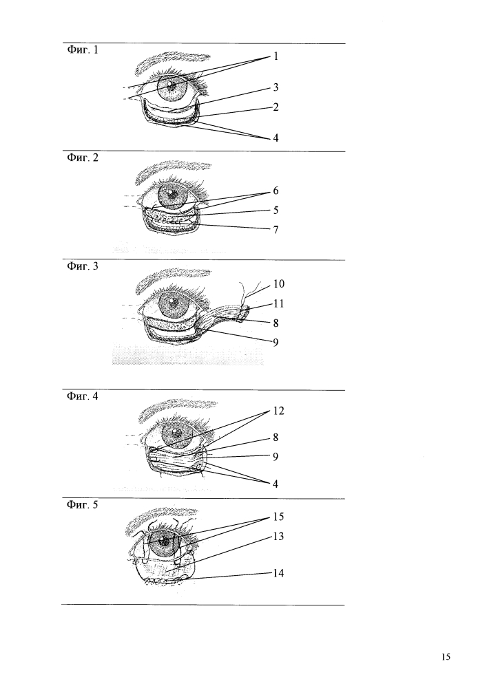 Способ блефаропластики обширных полнослойных дефектов век с помощью сложносоставного аутотрансплантата