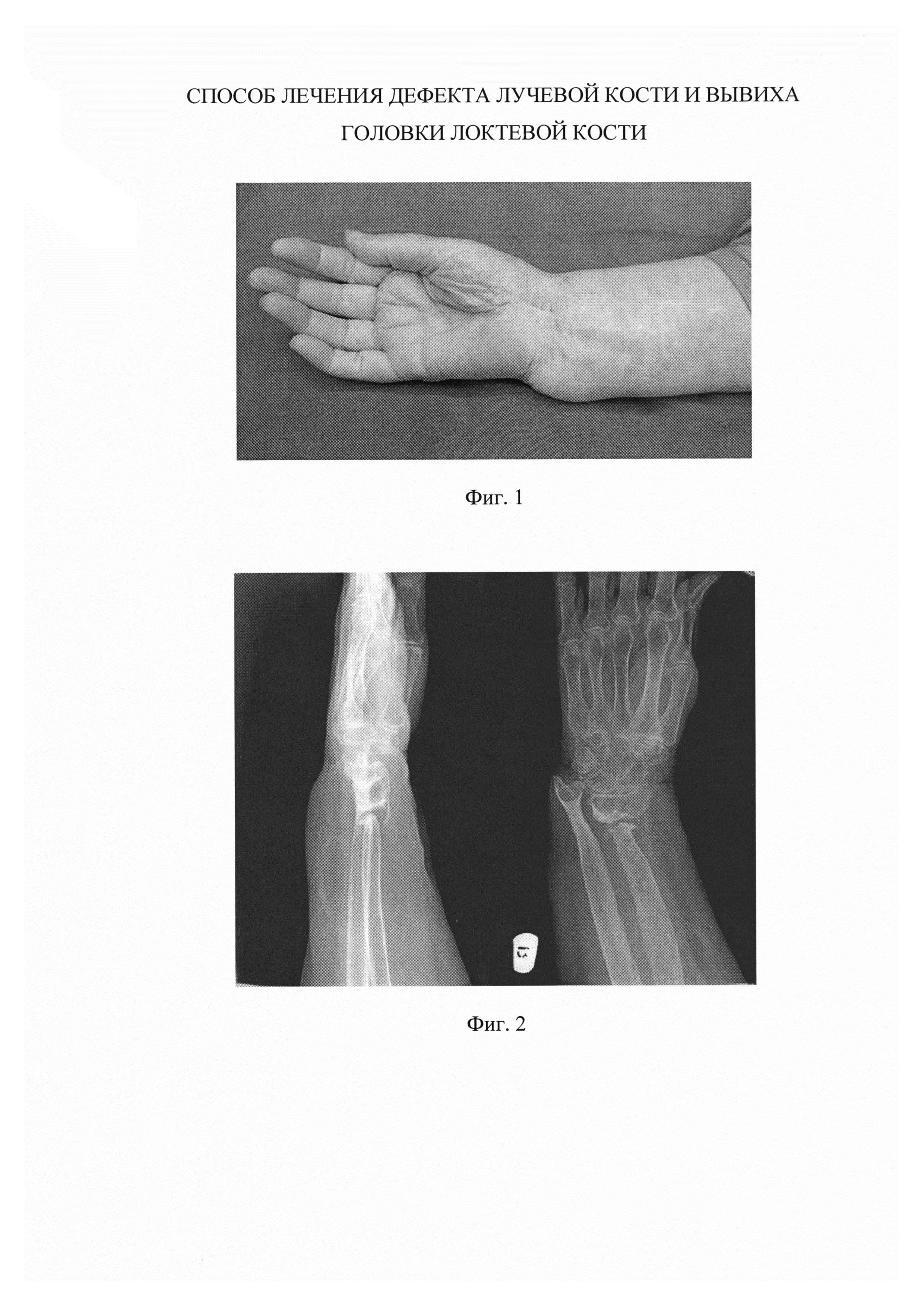 Способ лечения дефекта лучевой кости и вывиха головки локтевой кости