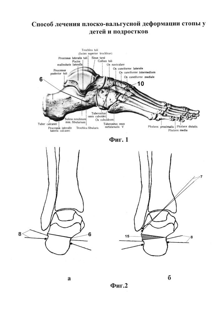 Способ лечения плоско-вальгусной деформации стопы у детей и подростков