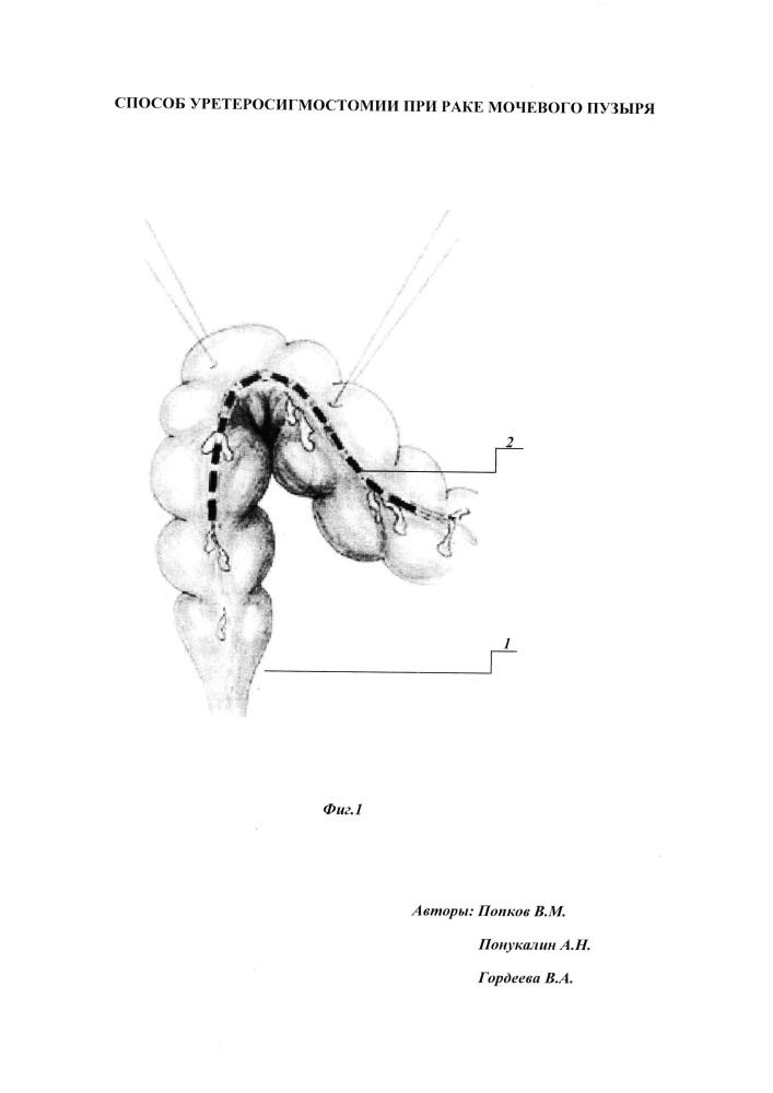 Способ уретеросигмостомии при раке мочевого пузыря