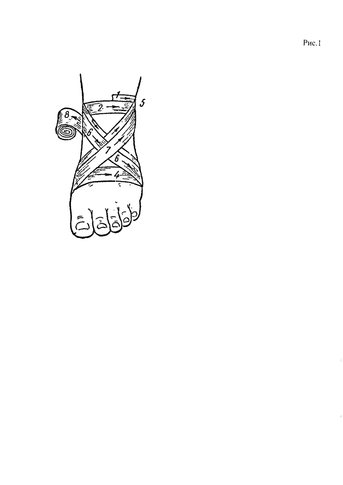 Способ фиксации голеностопного сустава при коррекции двигательных нарушений у детей с перинатальным поражением центральной нервной системы с помощью восьмиобразной повязки