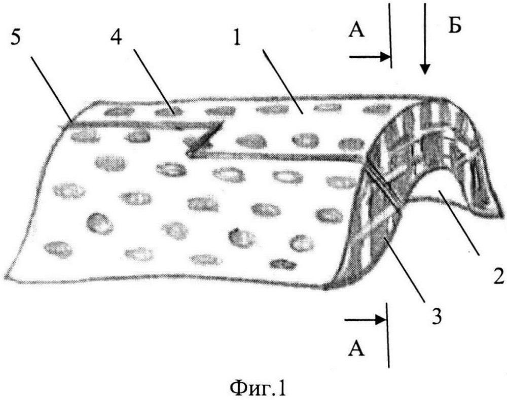 Блок имплантата для реконструкции дефектной части альвеолярного отростка и способ реконструкции дефектной части альвеолярного отростка