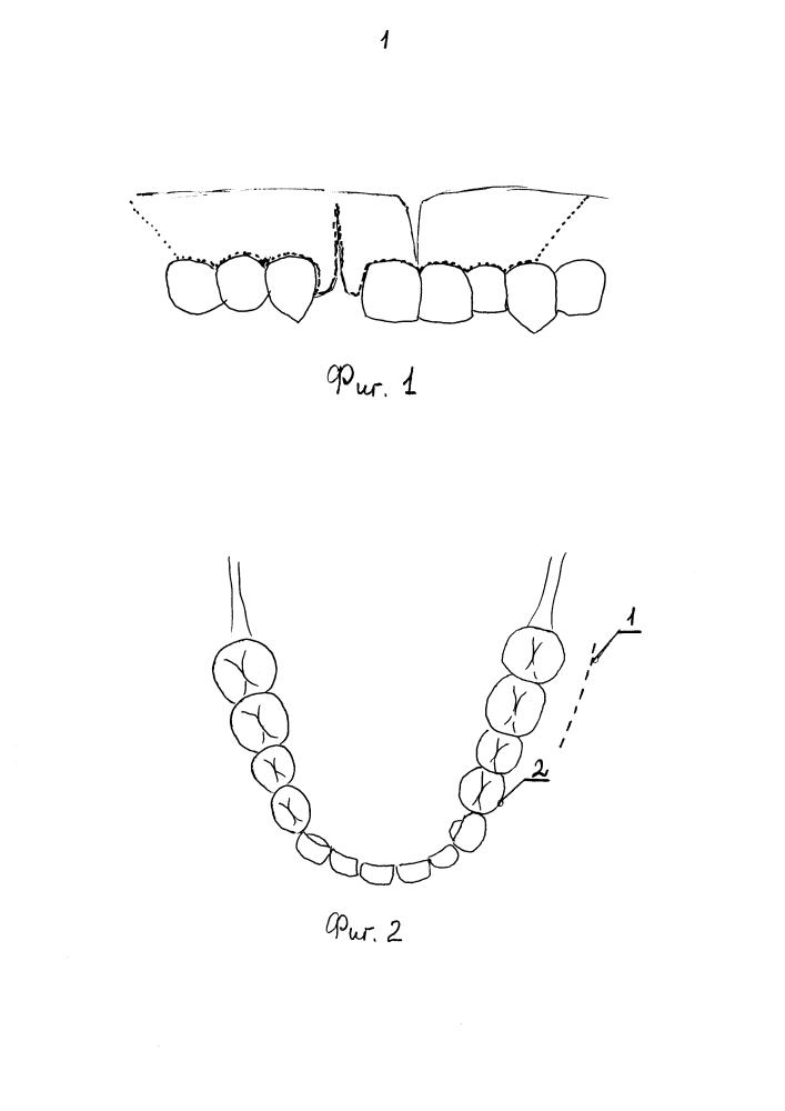 Способ пластики альвеолярного отростка у детей при врожденных расщелинах губы и неба