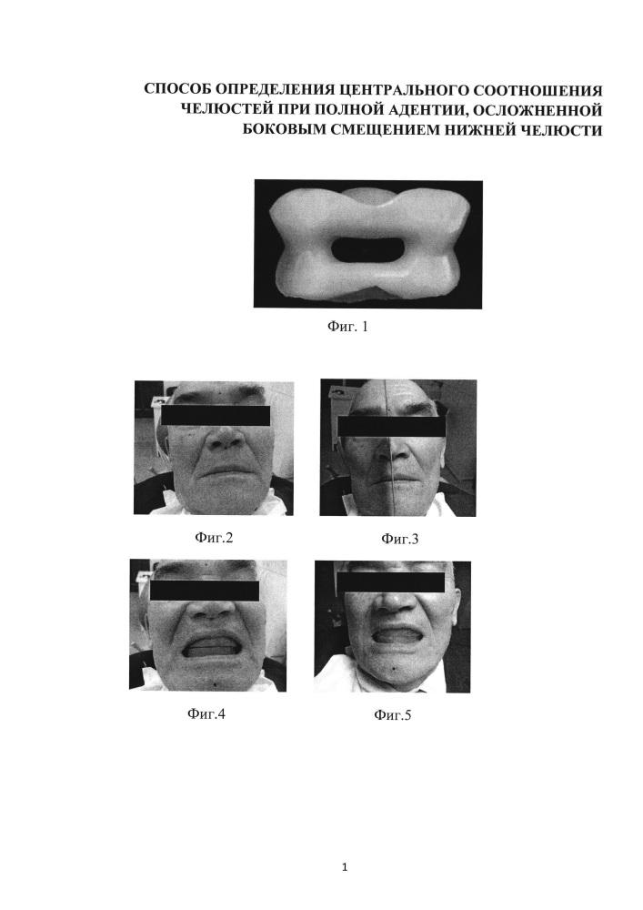 Способ определения центрального соотношения челюстей при полной адентии, осложненной боковым смещением нижней челюсти