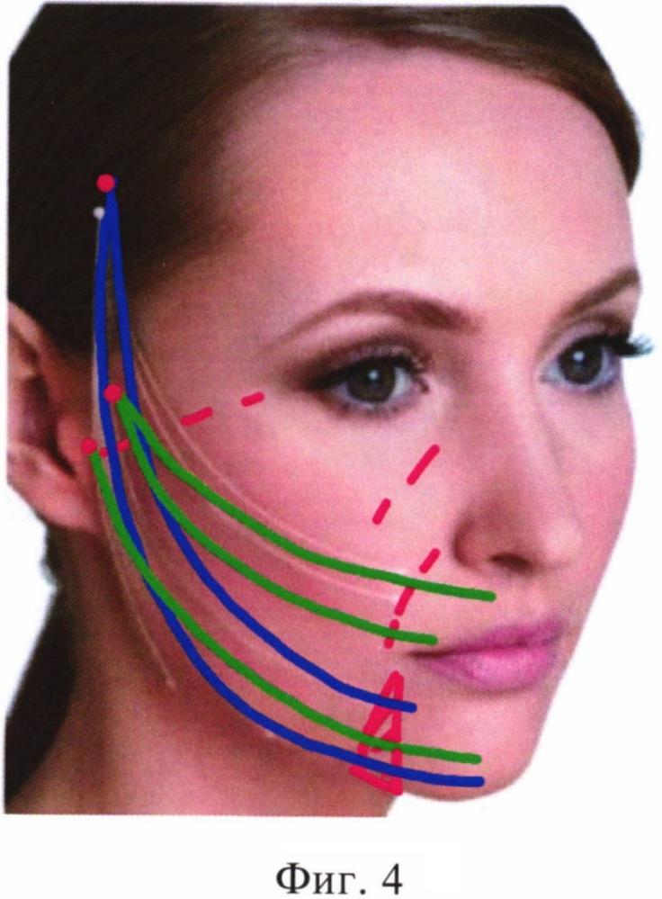 Малоинвазивный способ фиксации связок поверхностной мышечно-апоневротической системы лица
