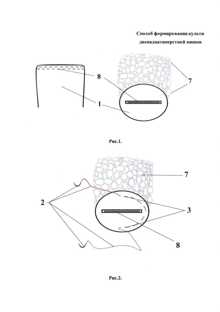 Способ формирования культи двенадцатиперстной кишки