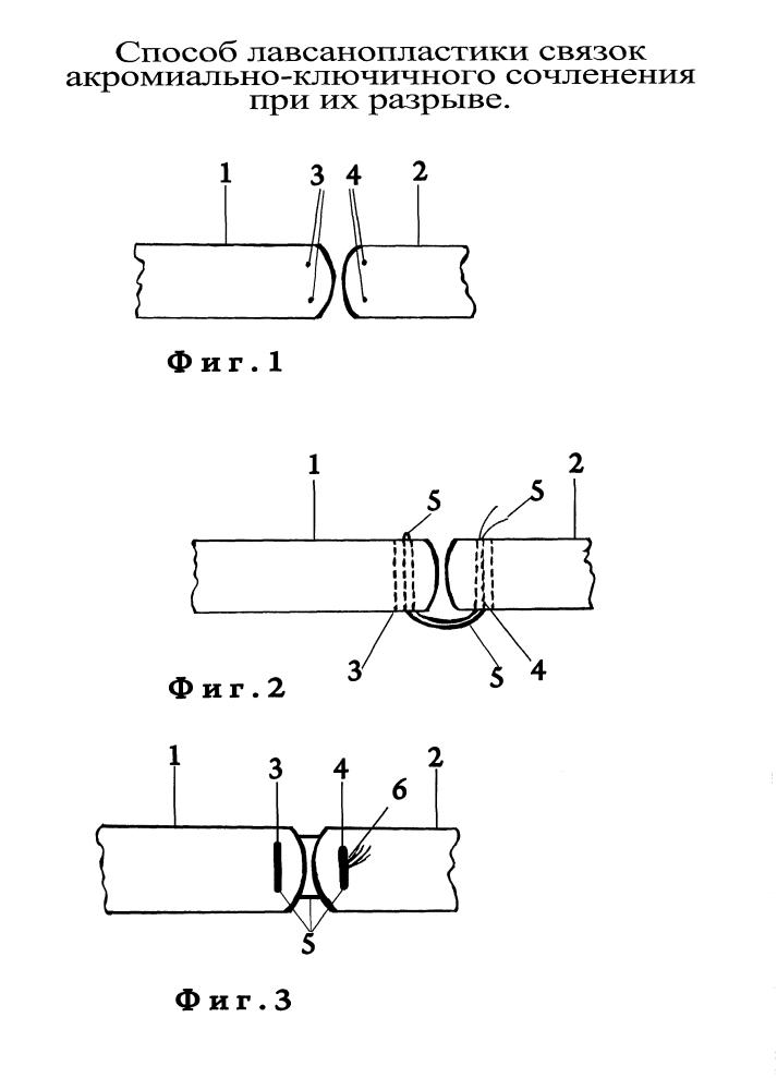 Способ лавсанопластики связок акромиально-ключичного сочленения при их разрыве