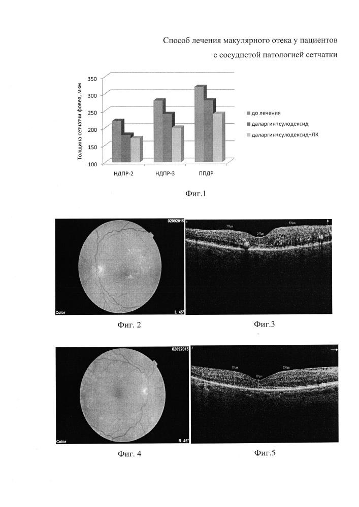 Способ лечения макулярного отека у пациентов с сосудистой патологией сетчатки