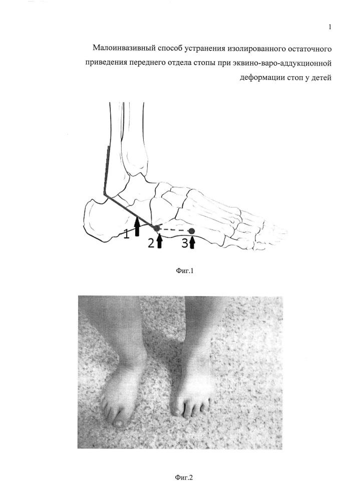 Малоинвазивный способ устранения изолированного остаточного приведения переднего отдела стопы при эквино-варо-аддукционной деформации стоп у детей