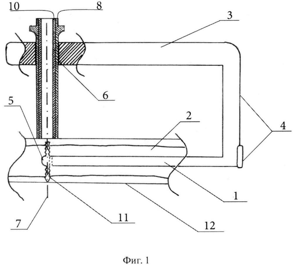 Прицельное устройство для удаления скрытых винтов из диафиза бедренной кости
