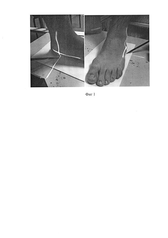 Способ определения внутренней ротации голени